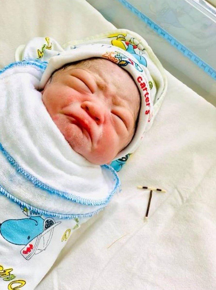 Un bébé nait avec le stérilet de sa mère dans la main et ses photos deviennent virales