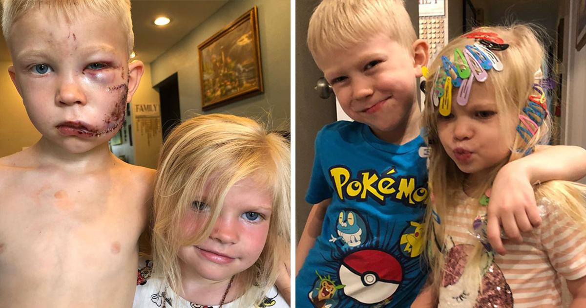 États-Unis : un enfant de 6 ans sauve sa petite sœur attaquée par un chien et finit avec 90 points de suture