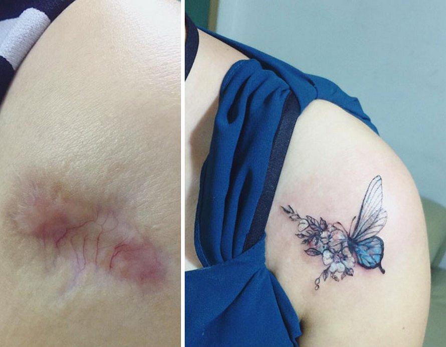 23 personnes qui ont demandé à une artiste de couvrir leurs cicatrices de tatouages