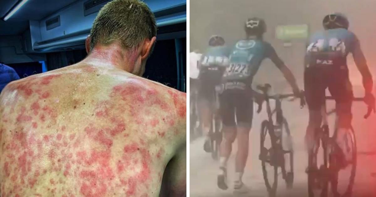 Un cycliste montre son dos meurtri après avoir traversé une tempête de grêle
