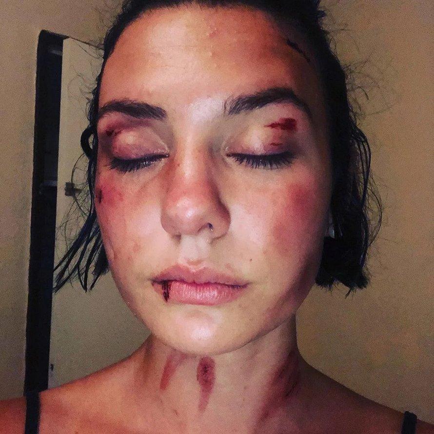 Une jeune femme violemment agressée par trois hommes à Nîmes publie une vidéo percutante pour «ne plus avoir honte»