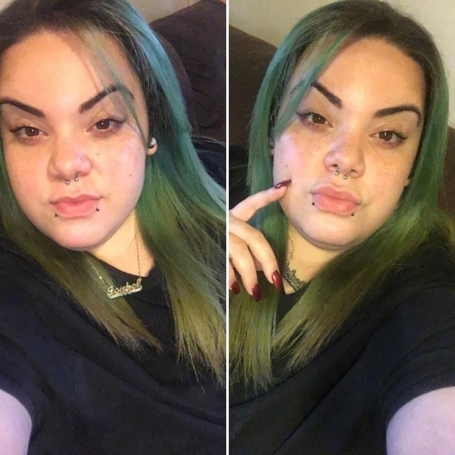 Cette femme ayant un excès de poils sur le visage causé par le SOPK se laisse pousser la barbe