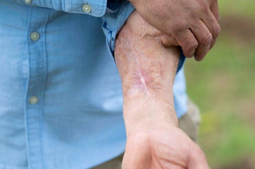 Un homme devient le premier au monde à recevoir un nouveau pénis sur le bras après avoir perdu l'autre