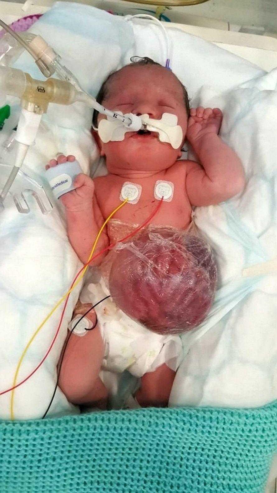 Cette petite fille est née avec les intestins, l'estomac et le foie à l'extérieur de son corps