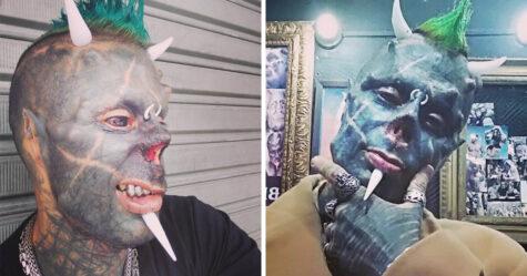 Cet homme qui a modifié son corps pour se transformer en «Satan humain» est devenu la troisième personne au monde à se faire enlever le nez