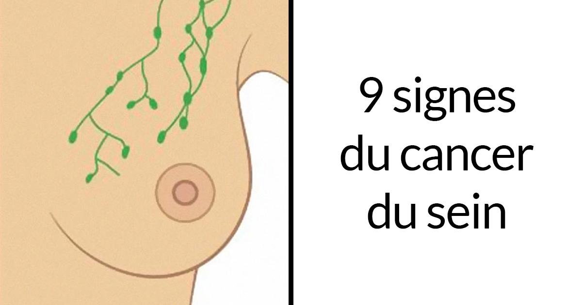 Ces 9 images qui montrent les signes courants du cancer du sein sont un must pour tout le monde