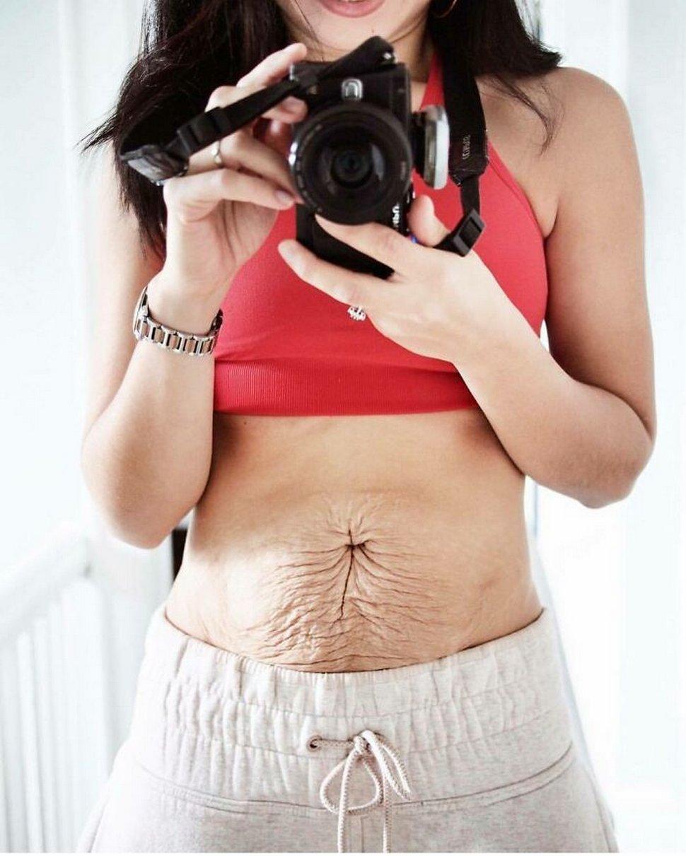 Des femmes partagent des photos brutes de leur corps post-partum qui montrent la réalité dont personne ne parle