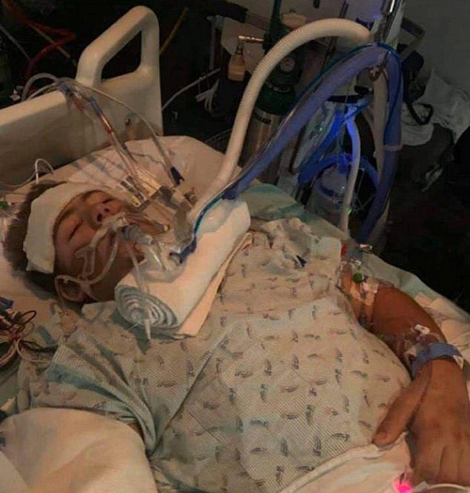 Un adolescent écrasé par un chariot élévateur choisit d'amputer la moitié inférieure de son corps pour sauver sa propre vie