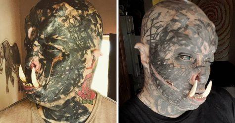 Un homme obsédé par les modifications corporelles s'est fait poser des défenses sur les dents