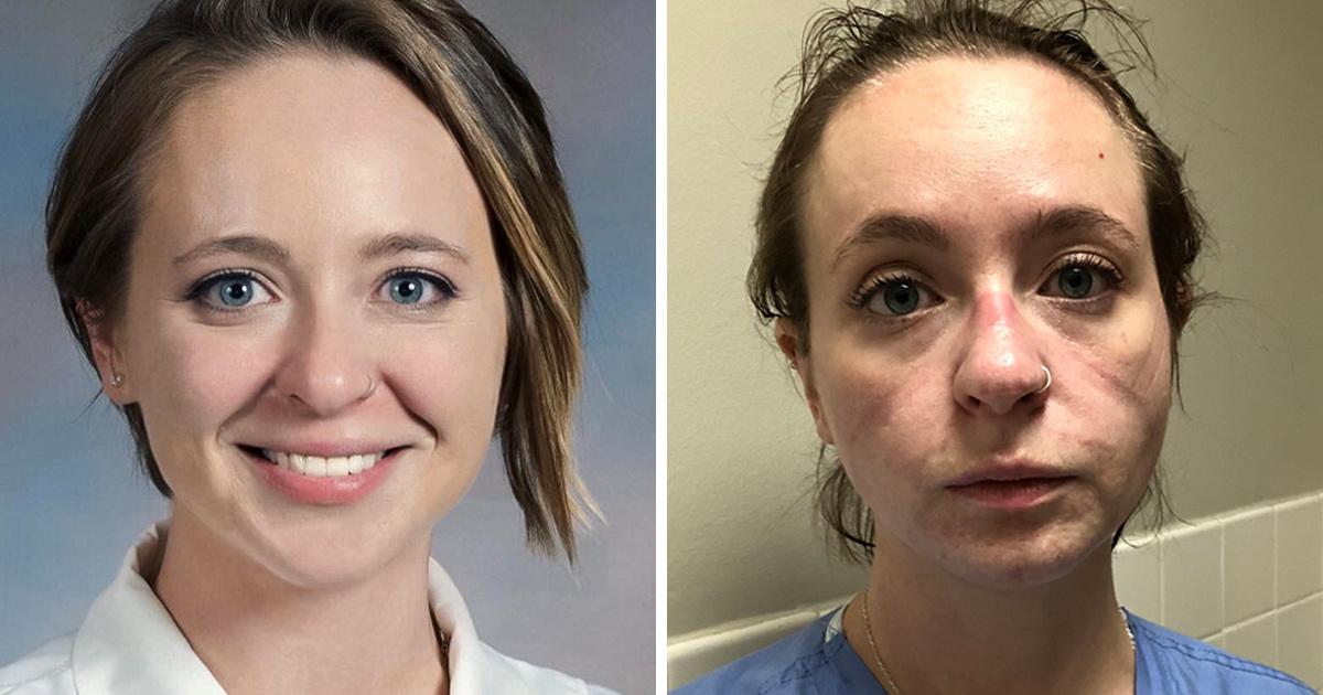 Ces photos avant et après d'une infirmière montrent la réalité des mois de traitement du coronavirus