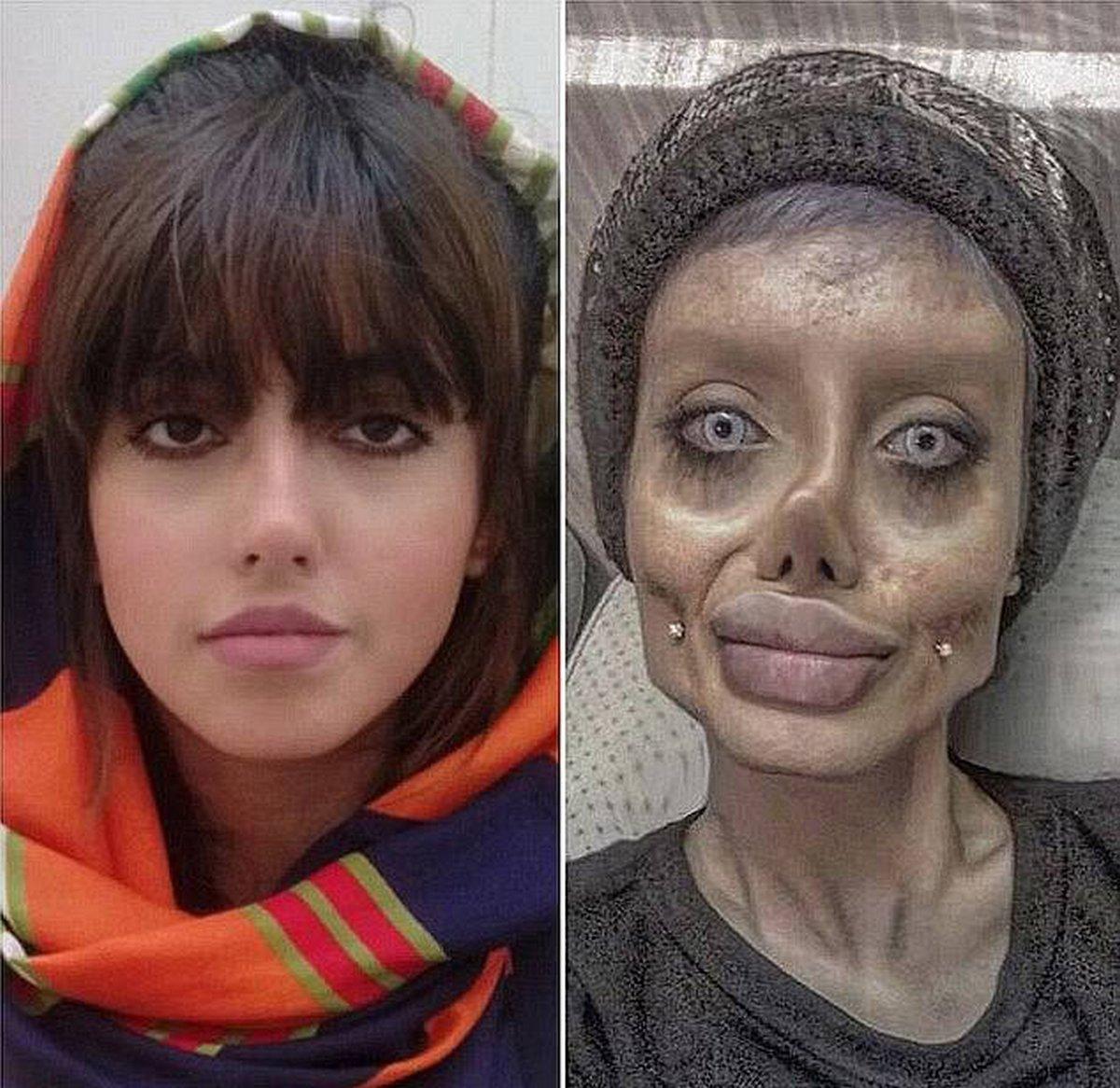 Une femme iranienne surnommée «Zombie Angelina Jolie» a été condamnée à 10 ans de prison