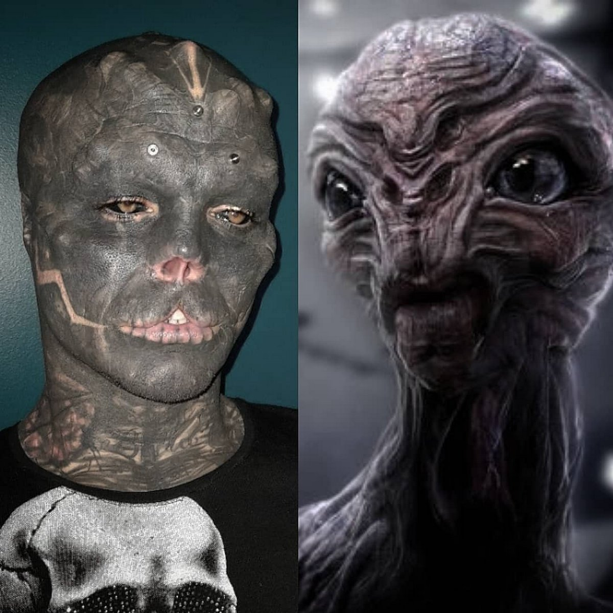 Cet homme sans nez qui s'est fait enlever la lèvre supérieure pour ressembler à un extraterrestre a maintenant du mal à parler