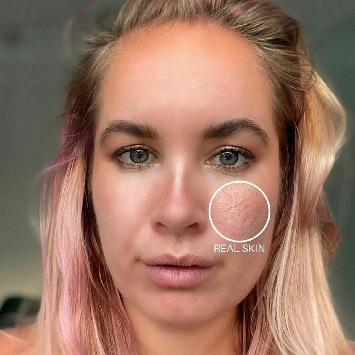 Ces femmes ont participé au défi #FilterDrop sur Instagram et ont montré leur visage sans filtre pour lutter contre les publicités de beauté retouchées