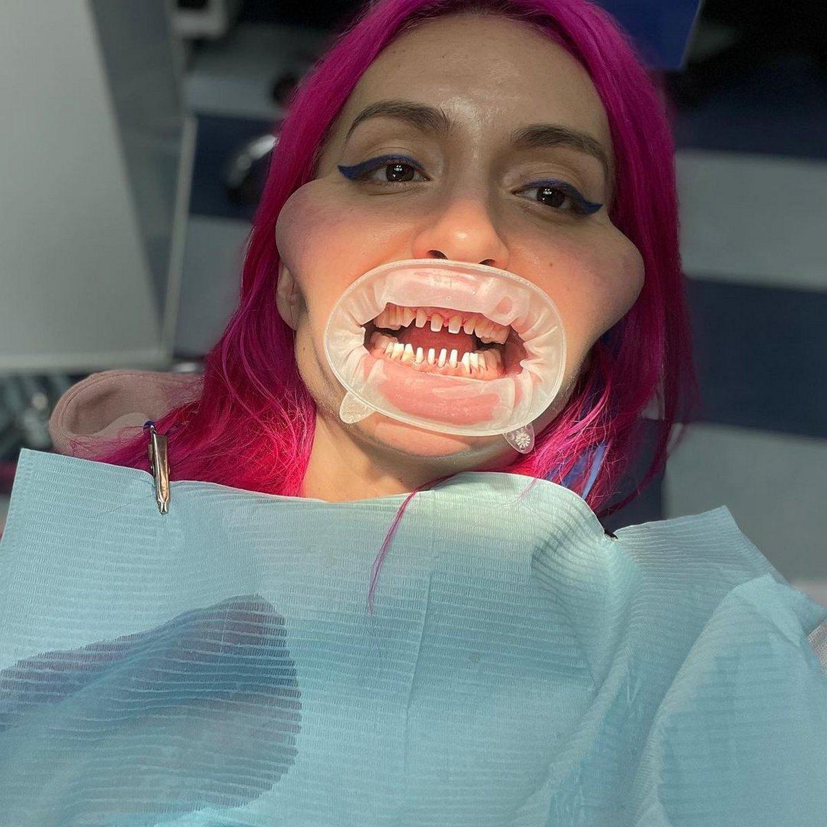 La femme aux plus grosses joues du monde prévoit de subir encore plus d'opérations chirurgicales