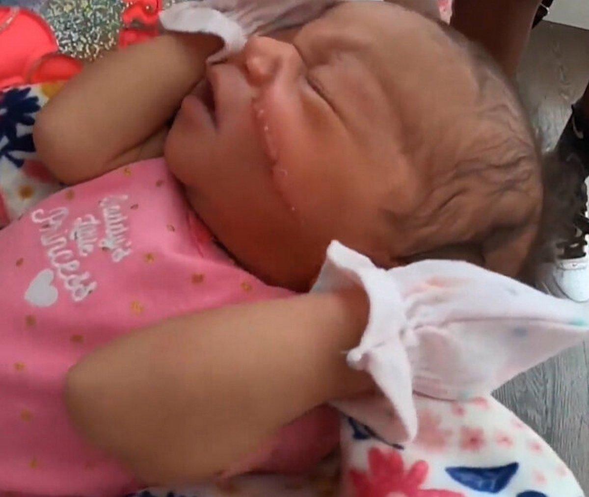 Un bébé naît avec une énorme coupure sur le visage après une césarienne